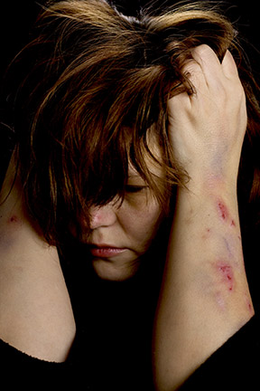 Make an appointment today with a domestic violence attorney!